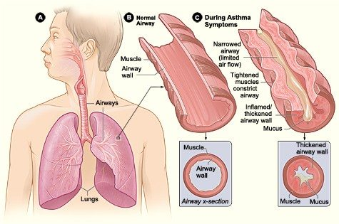 Asthma_attack-illustratio